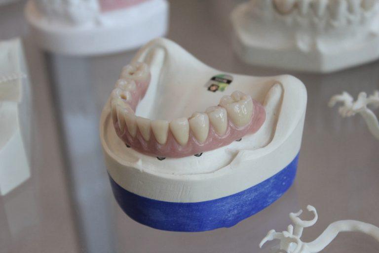 Prosthodontics at Bond Dental Clinic