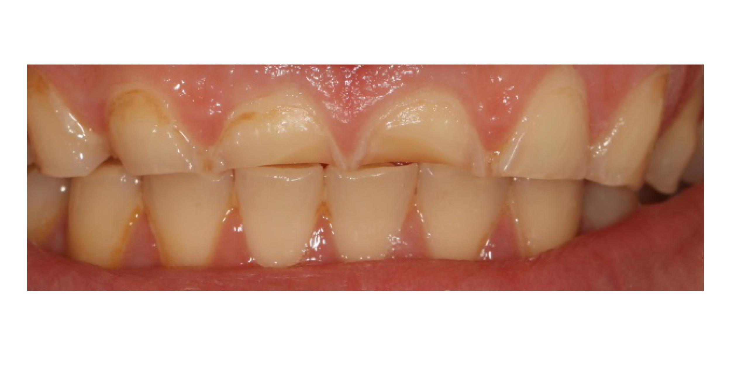 Prosthodontist specialist in Salisbury